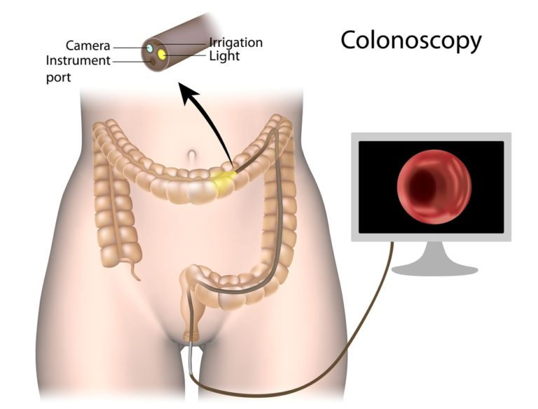 Colonoscopy Palmer General Surgeon Mat Su Surgical Associates