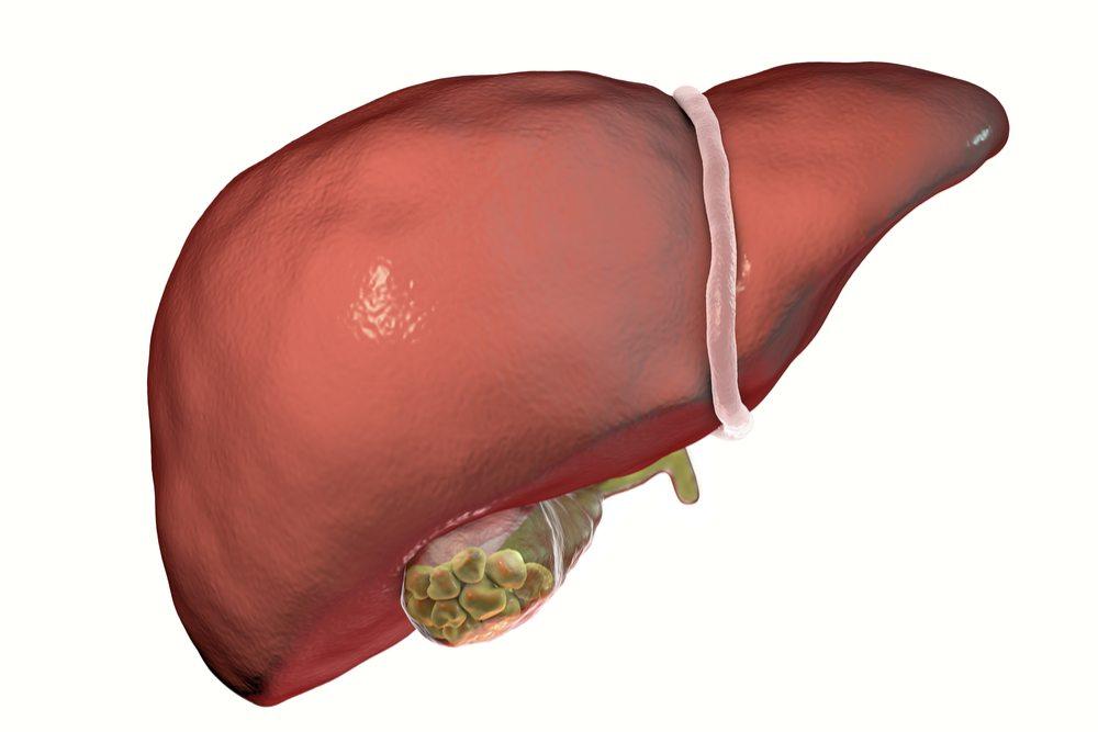 Gallbladder Disease (Cholecystectomy) » Palmer General Surgeon   Mat ...